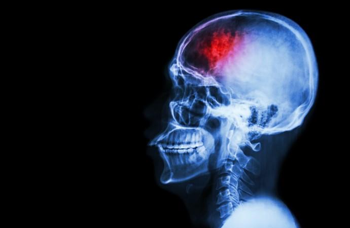 Acidente Vascular Cerebral (AVC) é a segunda causa de morte e sequelas no Brasil (Foto: iStock Photo)